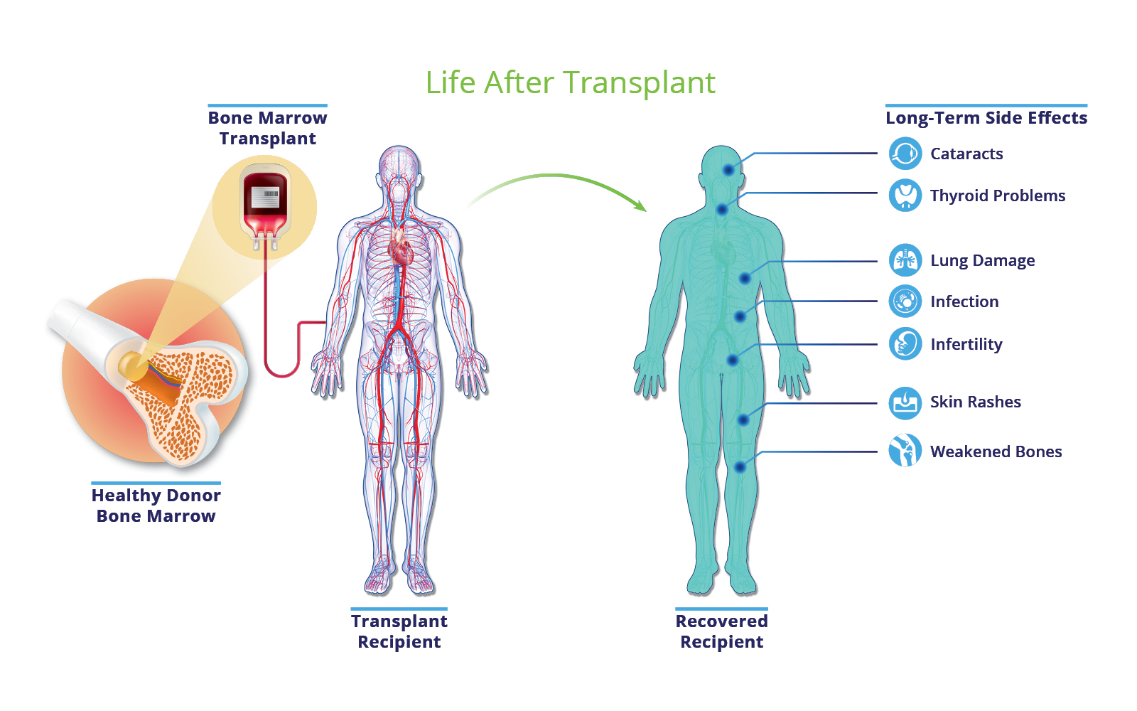 Life after Transplant - Bone marrow transplant survivors may face a variety of side effects years after the procedure.
