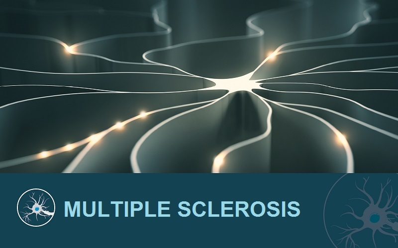 Image illustrating multiple sclerosis.