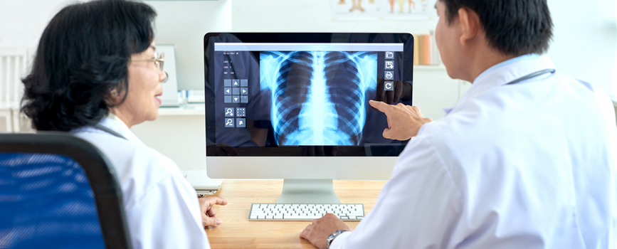 An Asian female clinician and an Asian male clinician discuss an x-ray illustrating the ribcage of a human on a computer screen.